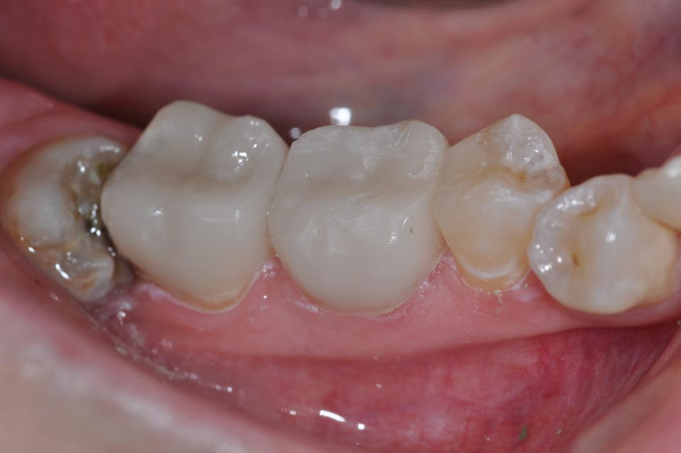 After picture of Creamic Crowns placement in three lower quadrant teeth