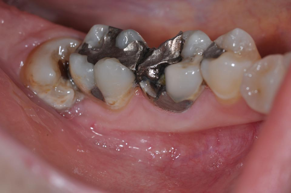 Before crowns image of patient's failing amalgam fillings