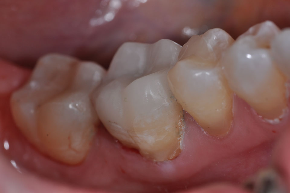 Onlays using CEREC