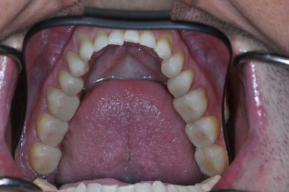 Onlays restoring multiple decayed teeth
