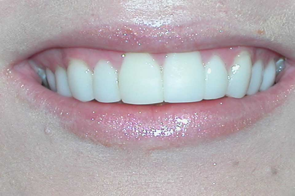 After veneers proportional smile