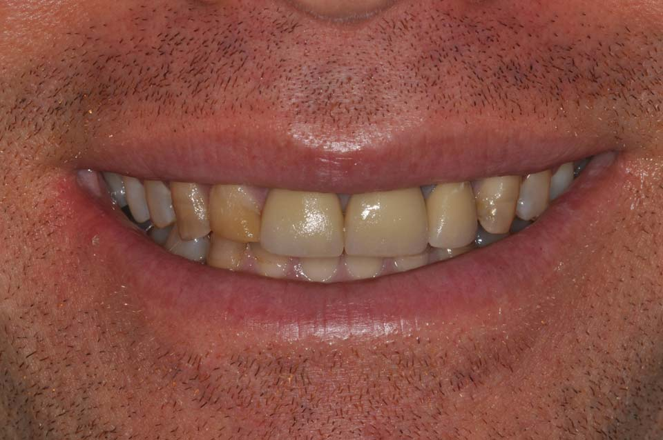 Before Veneer smile