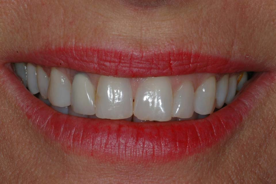 Smile before veneers