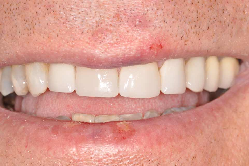 Smile after veneers