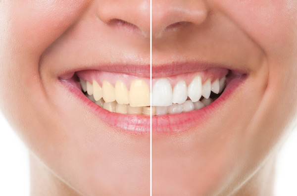 Before and after photo of teeth whitening treatment